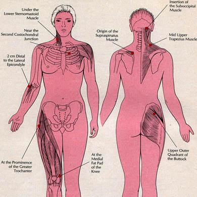 fibromyalgie-18-points-douloureux-400